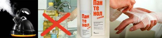 Чем помочь от ожога в домашних условиях